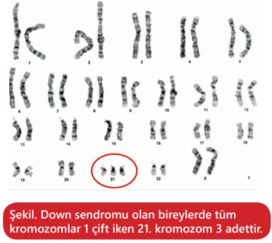 Down Sendromuna sebep olan 21. kromozom